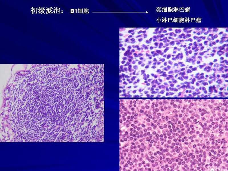 周小鸽教授解读淋巴结基本结构及相应b细胞淋巴瘤