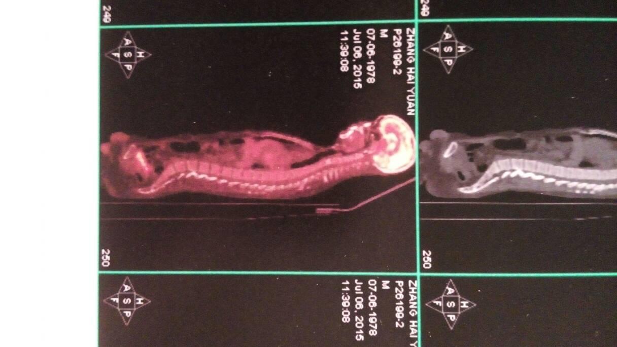 pet图片关于颈椎骨部分 淋巴瘤之家