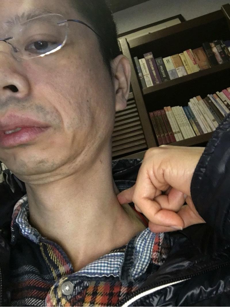双侧颈部淋巴结无痛进行式肿大,淋巴瘤吗